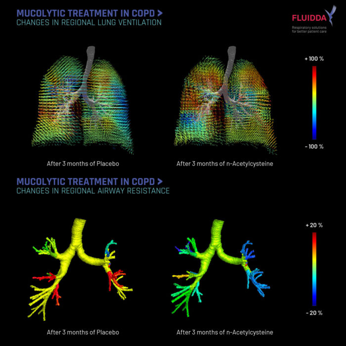 Mucus in COPD