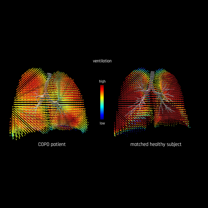 ERS 2020 – FRI shows significant regional ventilation defects in COPD
