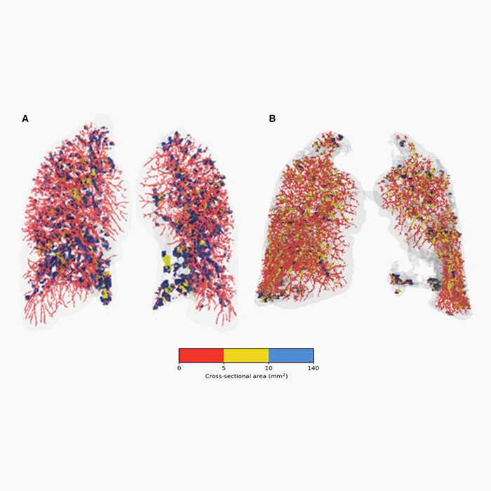 FRI identifies redistribution of pulmonary blood flow in patients with COVID-19