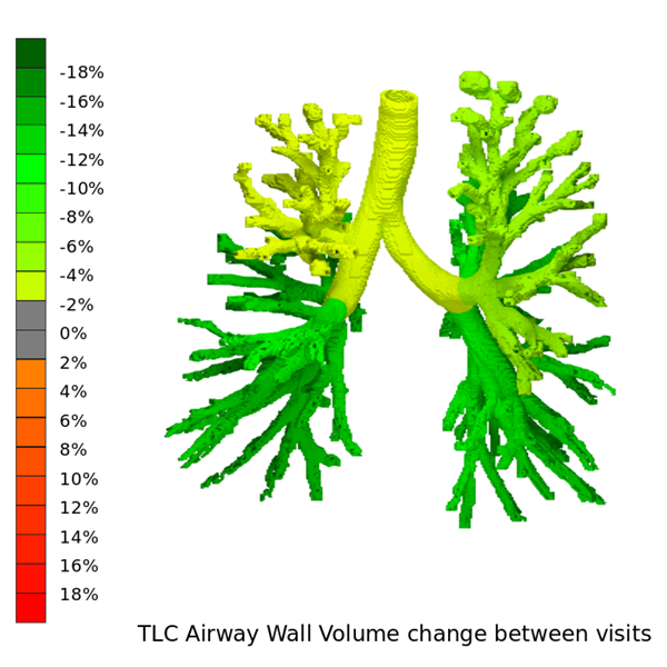 Assessing short term effects of Orkambi on lung function in CF patients