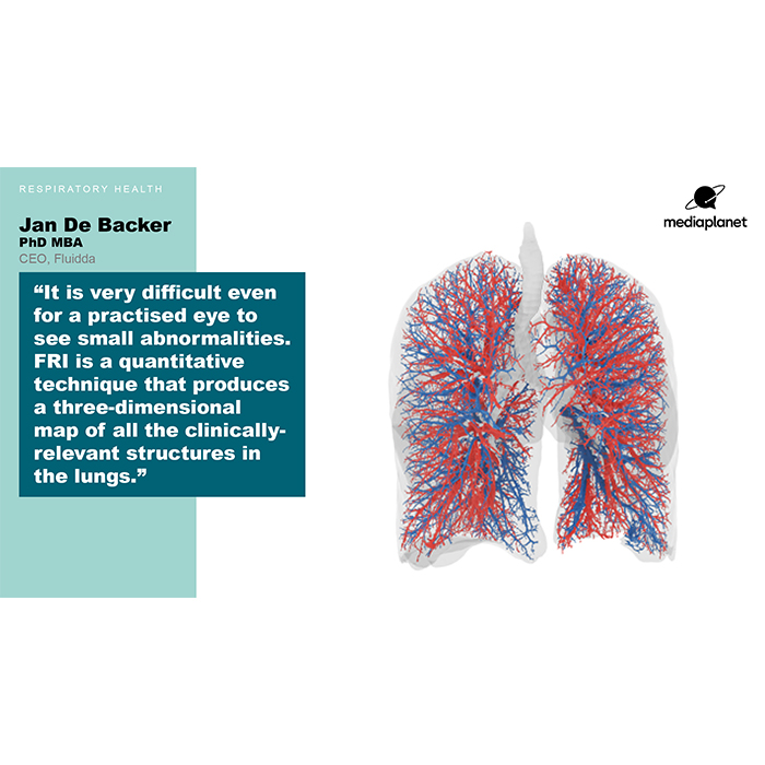 New technique offers better lung care – Campaign The Guardian