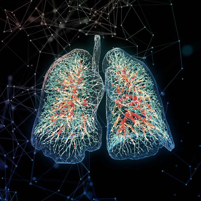 Fluidda's Images Featured On Cover European Respiratory Journal